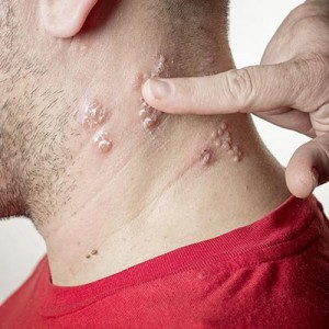 shingles-vaccine-baltimore-neck